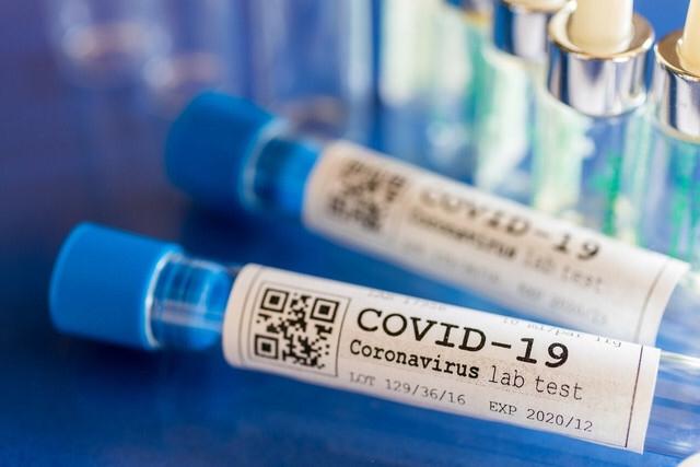 Rusiyalı professor koronavirusla bağlı nikbin proqnoz verdi