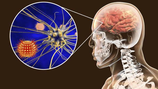 Alimlər: Koronavirus beyini də zədələyir