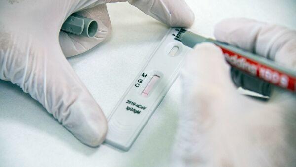 Hindistan koronavirus üçün antikor testi hazırladı