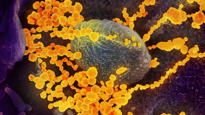 Koronavirusun daha bir xüsusiyyəti açıqlandı