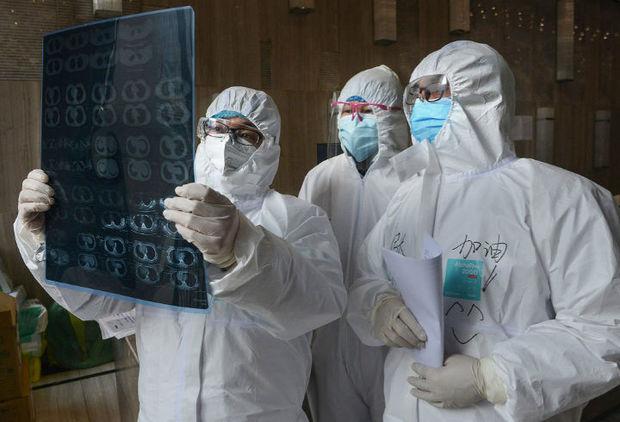 Alimlər koronavirus xəstələrində ömürlük qala biləcək fəsadları açıqladı